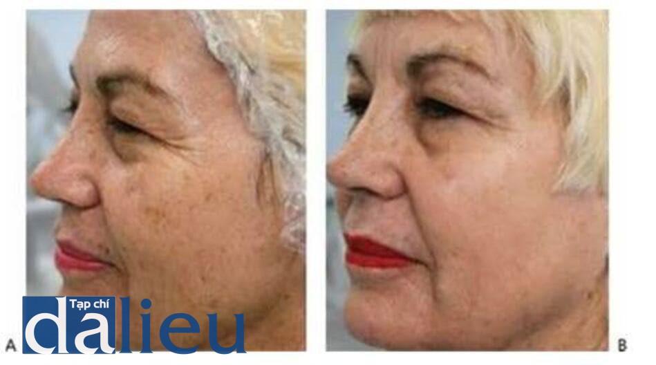 HÌNH 23 Rối loạn sắc tố, nếp nhăn, và kết cấu da thô ráp trước khi (A)và sau khi (B) kết hợp điều trị với laser không xâm lấn và xâm lấn.