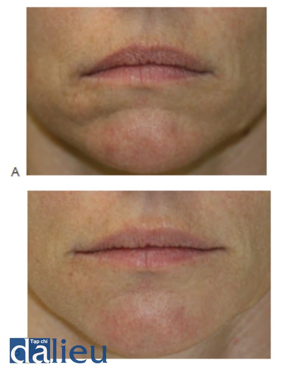 FIGURE 2 ● Nếp nhăn cằm mở rộng trước (A) và 4 tuần sau (B) điều trị sử dụng canxi hydroxylapatite.