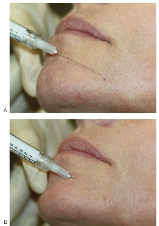 FIGURE 5 ● Điều trị chất độn da nếp nhăn cằm kéo dài: xác định điểm chèn kim (A) và kỹ thuật tiêm (B).