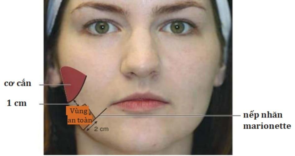 Hình 2. Vùng an toàn khi tiêm botulinum toxin điều trị nếp nhăn marionette.