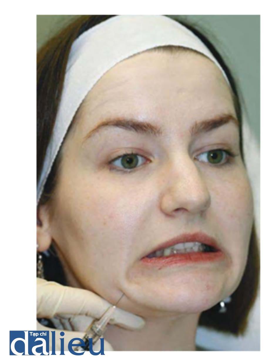 Hình 5. Kỹ thuật tiêm botulinum toxin cơ hạ góc miệng