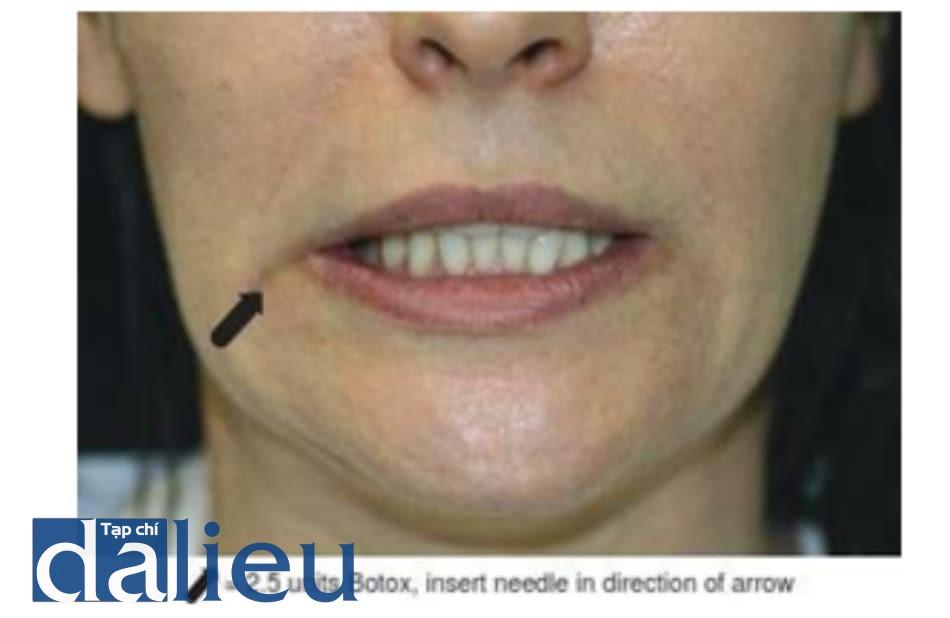 Hình 6. Sức co khác nhau của cơ hạ góc miệng hai bên, cơ phía bên phải co mạnh hơn có thể được điều trị bằng liều nhỏ botulinum toxin.