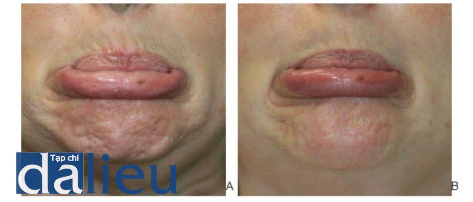 Hình 2. Cằm đá cuội trước (A) và 2 tuần (B) sau điều trị botulinum toxin cơ cằm, hình chụp ở trạng thái bỉu môi.
