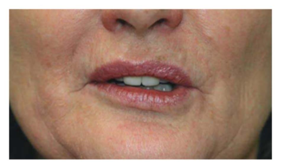Hình 6. Môi bất đối xứng, phần môi dưới bên phải cao hơn do cơ hạ môi dưới bị làm yếu do ảnh hưởng của botulinum toxin.