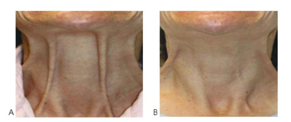 Hình 1. Dải cơ cổ trước (A) và 2 tuần (B) sau điều trị botulinum toxin cơ bám da cổ, ảnh chụp cơ ở trạng thái hoạt động.