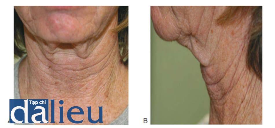 Hình 3. Da chảy xệ nhìn từ phía trước (A) và phía bên (B) không thuộc chỉ định điều trị bằng botulinum toxin ở vùng cổ.