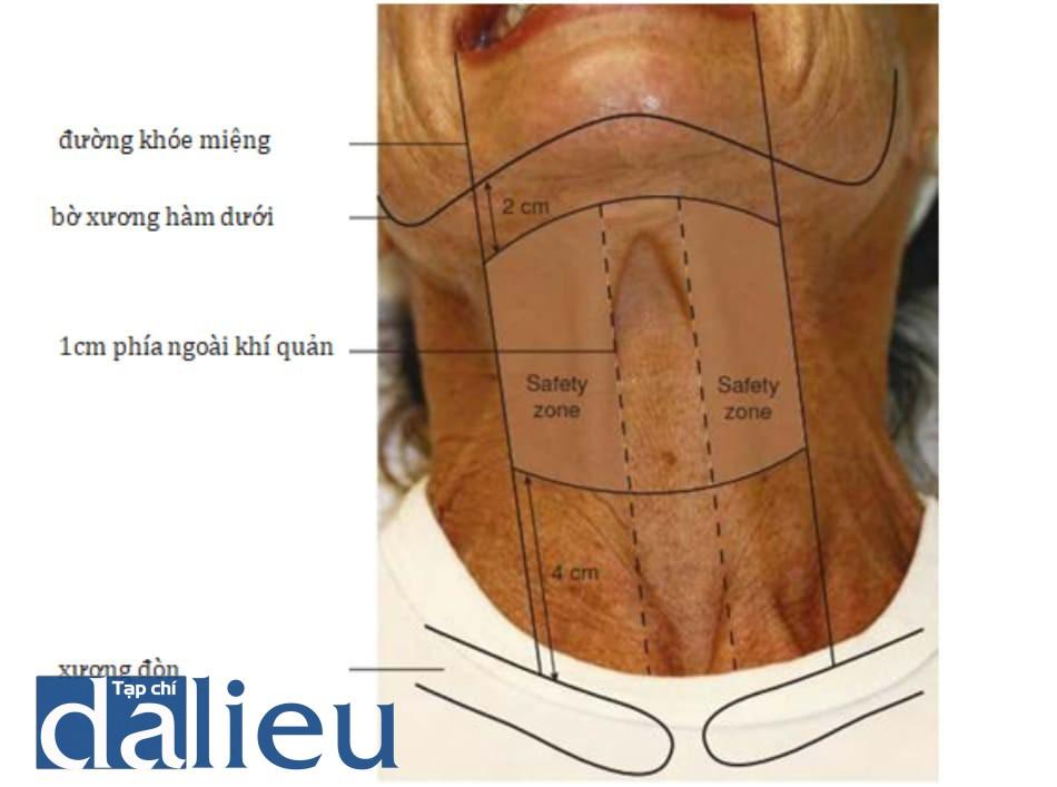 Hình 4. Vùng an toàn khi tiêm dải cơ cổ bằng botulinum toxin.