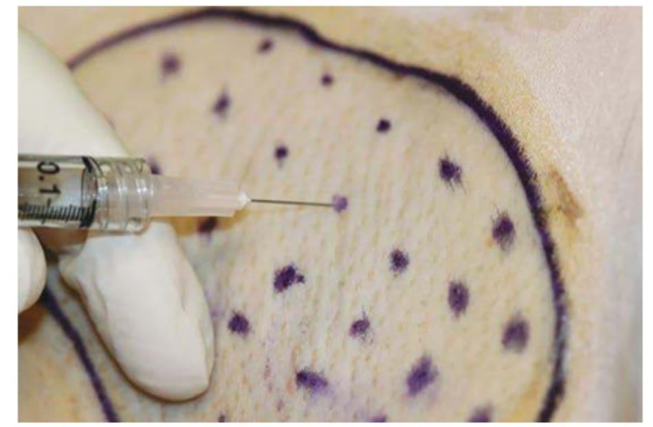 Hình 7. Kỹ thuật tiêm botulinum trong da để điều trị tăng tiết mồ hôi nách.
