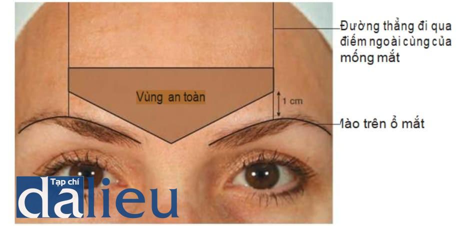 Hình 4 .Vùng an toàn trong điều trị nếp nhăn cau mày bằng botulinum toxin