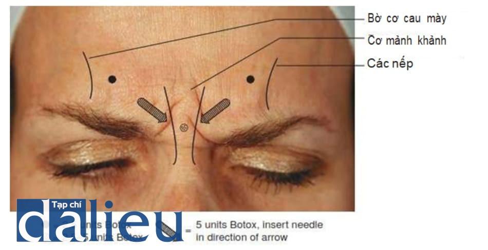 Hình 5. Tổng quan về các điểm tiêm và liều tiêm Botulinum toxin trong điều trị nếp nhăn cau mày