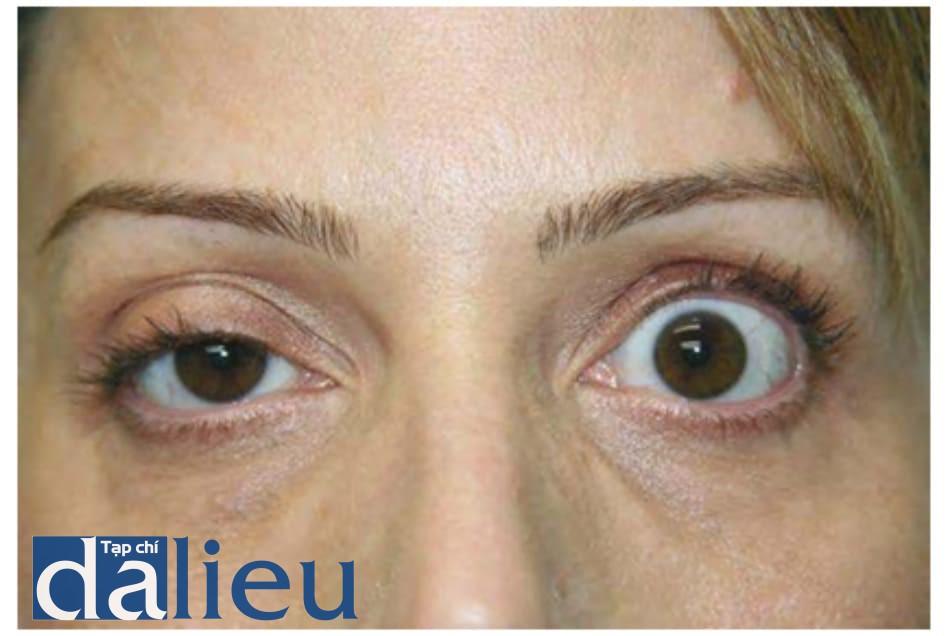 Hình 9 Sụp mi mắt bên phải