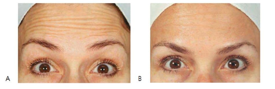Hình 1 Các nếp nhăn trán trước (A) và sau 1 tháng (B) điều trị với botulinum toxin cơ trán, ảnh chụp ở trạng thái nhướng mày.