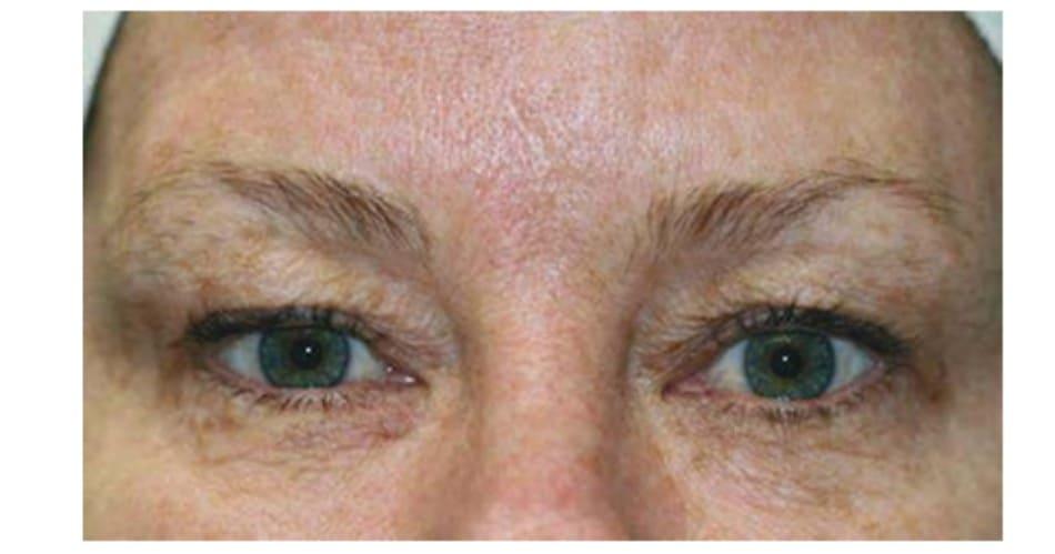 Hình 2 Chảy xệ mí mắt trên là một chống chỉ định của điều trị nếp nhăn trán bằng botulinum toxin.