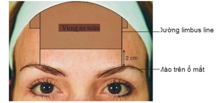Hình 3 Vùng an toàn trong điều trị nếp nhăn trán bằng Botulinum toxin