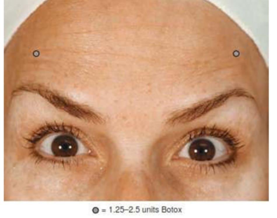 Hình 7. Lông mày bị xếch lên cao và cách xử trí bằng botulinum toxin