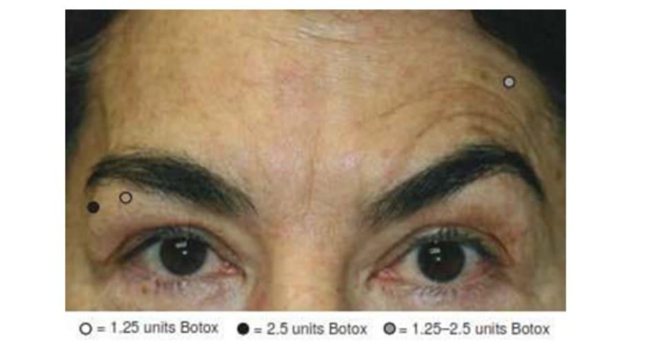 Hình 9. Lông mày bất cân xứng và cách xử trí với botulinum toxin