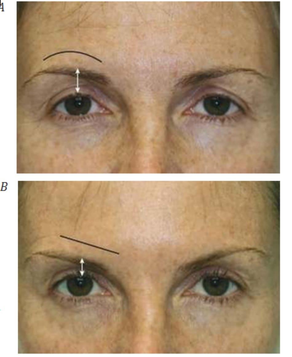 Hình 8. Vị trí lông mày trước (A)và sau 2 tuần (B) điều trị bằng botulinum toxin cho nếp nhăn trán (lông mày bị sụp)