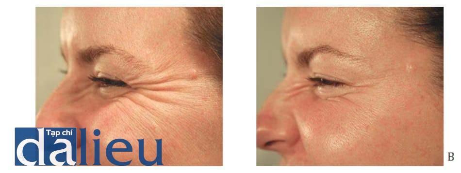 Hình 1: Nếp nhăn đuôi mắt trước (A) và sau 1 tháng (B) điều trị cơ vòng mắt ngoài bằng botuli- num toxin, ảnh chụp khi cơ co.