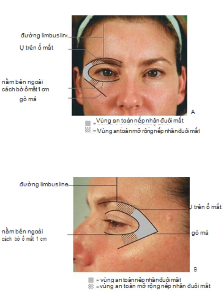 Hình 2 Vùng an toàn trong điều trị nếp nhăn đuôi mắt bằng botulinum toxin: mặt trước (A) và mặt bên (B).