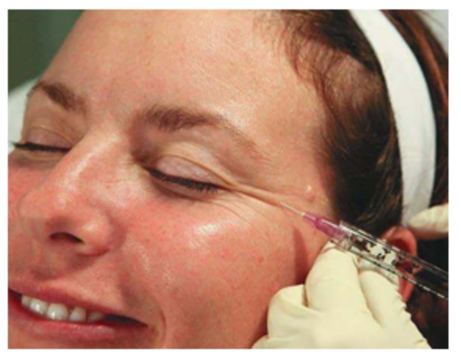 Hình 4. Điểm tiêm botulinum toxin thứ 1 vào phần ngoài của cơ vòng mắt