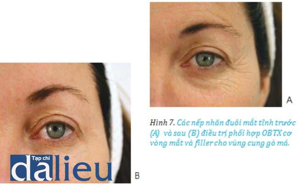 Hình 7. Các nếp nhăn đuôi mắt tĩnh trước (A)và sau (B) điều trị phối hợp OBTX cơ vòng mắt và filler cho vùng cung gò má.