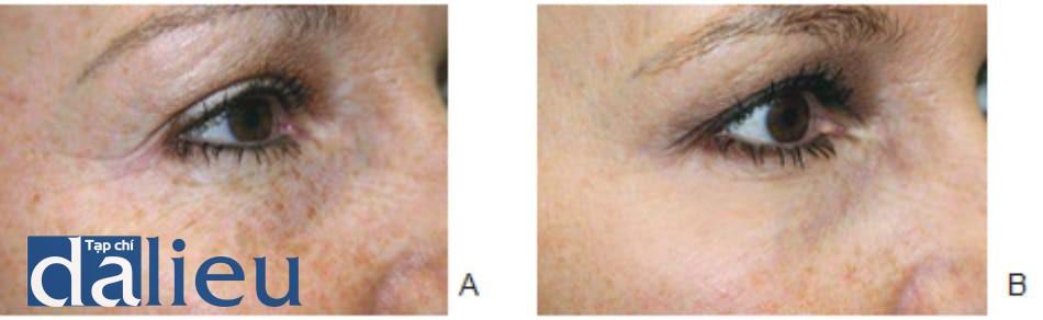 Hình 8. Các nếp nhăn đuôi mắt tĩnh trước (Hình 8A) và sau (Hình 8B) điều trị phối hợp OBTX cơ vòng mắt và laser xâm lấn vi điểm cho vùng quanh mắt.