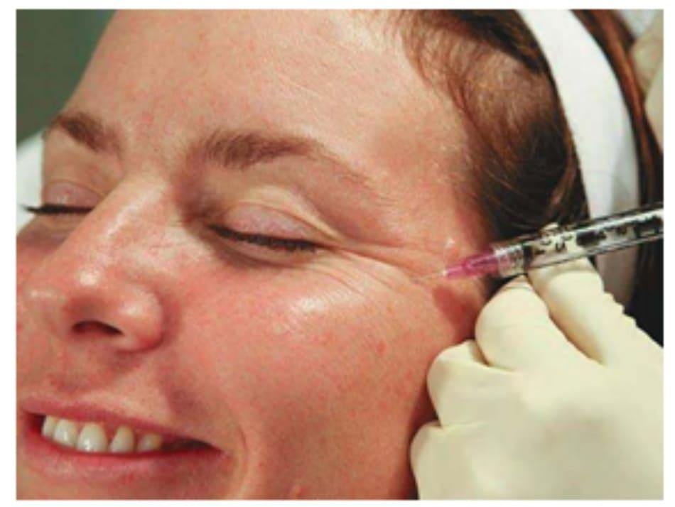 Hình 6. Điểm tiêm botulinum toxin thứ 3 vào phần ngoài của cơ vòng mắt