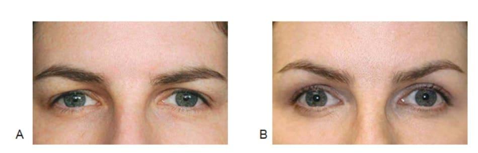 Hình 1 Nâng cung mày trước (A) và sau 2 tuần (B) điều trị botulinum toxin phần dưới lông mày của cơ vòng mắt, đồng thời bệnh nhân cũng được điều trị botulinum toxin cho phức hợp cơ gian mày để giảm nếp nhăn cau mày.