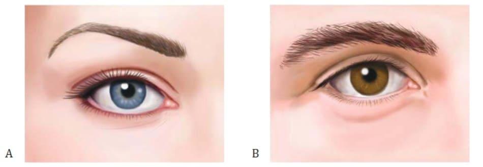 Hình 2 Hình dáng lông mày: ở nữ (A) và ở nam (B).