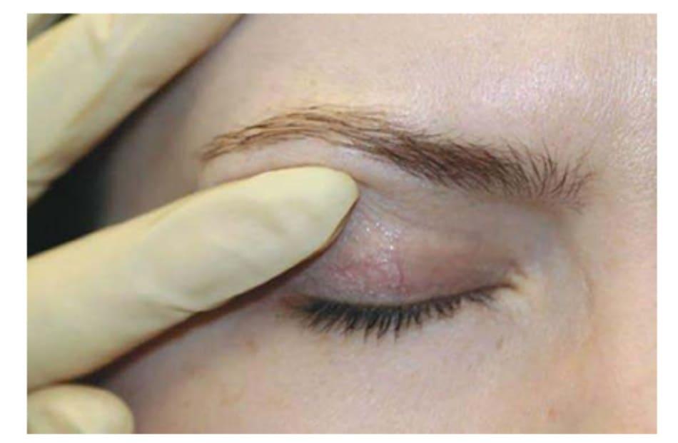 Hình 3. Botox điều trị nâng cung mày nhắm đến cơ đích là phần trên ngoài của cơ vòng mắt