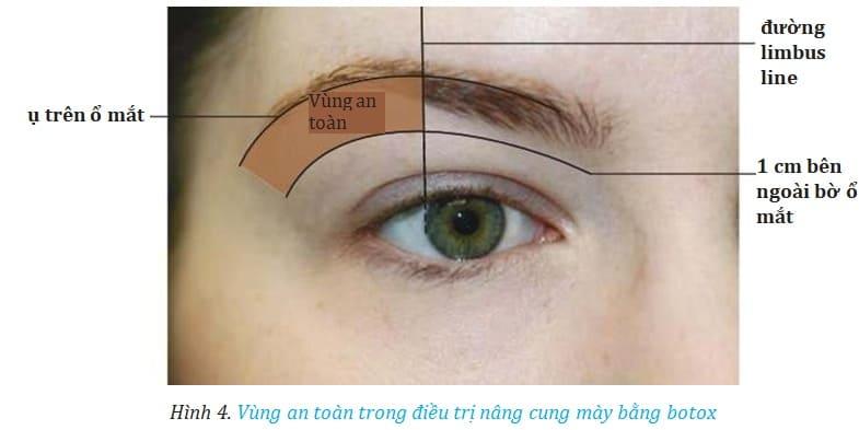 Hình 4. Vùng an toàn trong điều trị nâng cung mày bằng botox