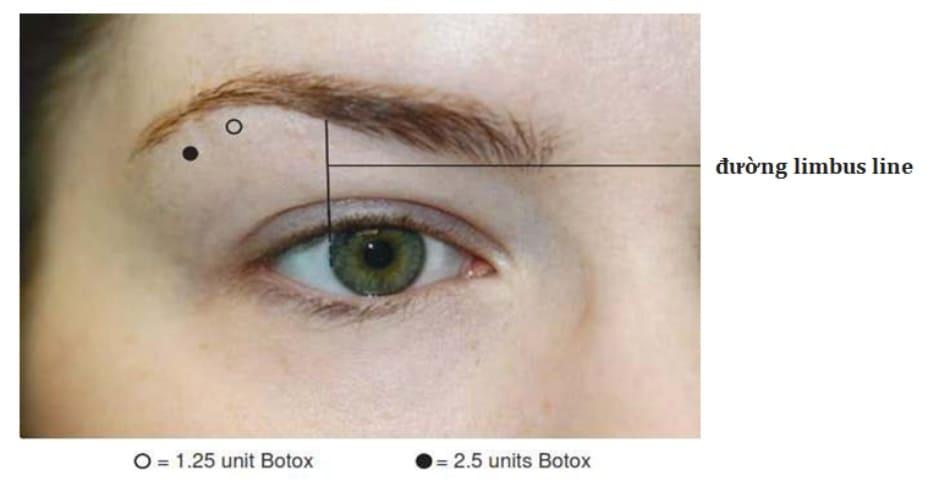 Hình 5. Tổng quan về các điểm tiêm và liều tiêm botulinum toxin trong nâng đuôi lông mày.