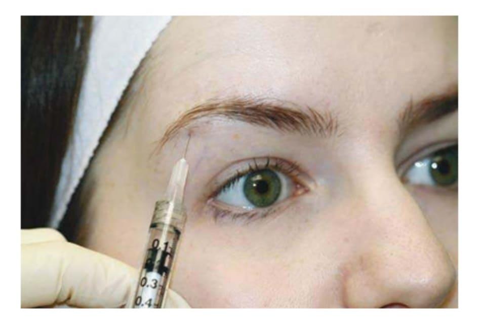 Hình 6. Kĩ thuật tiêm botulinum toxin nâng đuôi lông mày