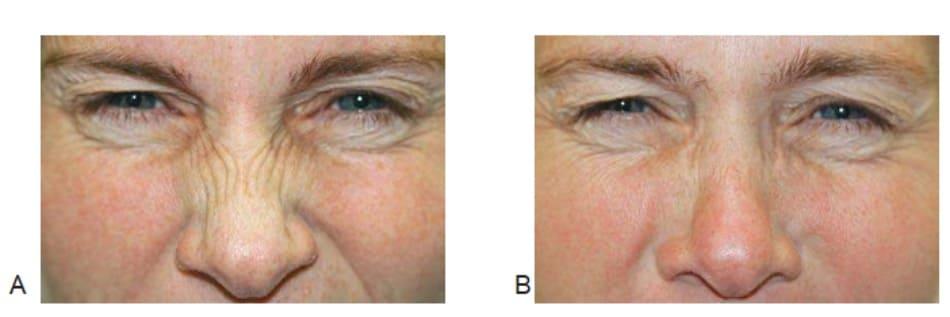 Hình 1: Nếp nhăn thỏ trước (A) và 2 tuần (B) sau tiêm botulinum toxin cơ mũi, khi đang nhăn mũi.