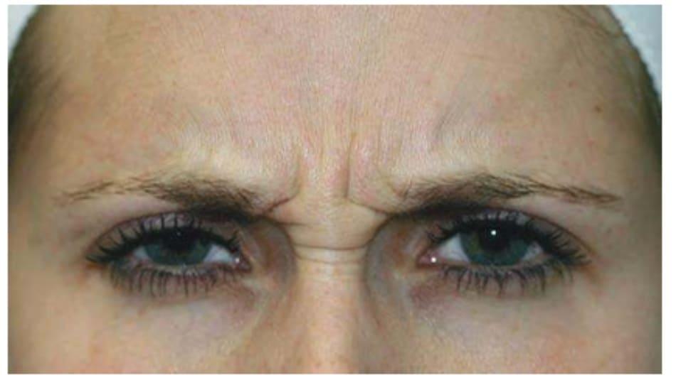 Hình 2: Nếp nhăn ngang mũi hình thành do co cơ mảnh khảnh.