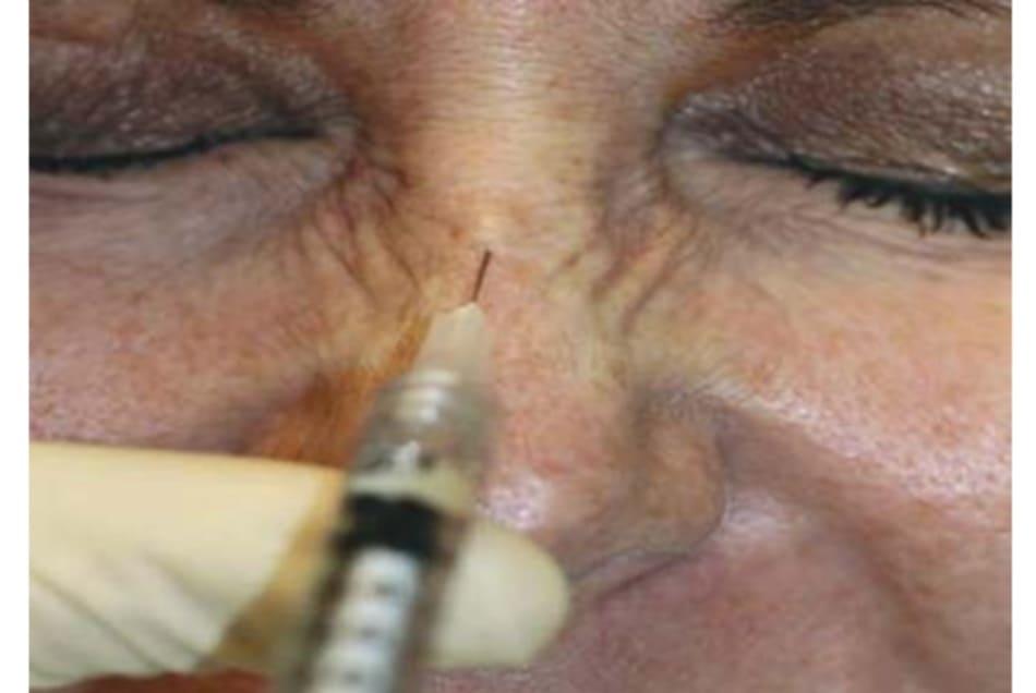 Hình 6. Kĩ thuật tiêm botulinum toxin cơ mũi ở lưng mũi.