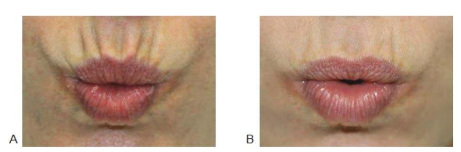 Hình 1. Nếp nhăn môi trên (A) trước và 2 tuần (B) sau khi tiêm botulinum toxin vào cơ vòng miệng phía trên khi đang ở trạng thái hoạt động.