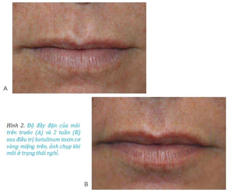 Hình 2. Độ đầy đặn của môi trên trước (A) và 2 tuần (B) sau điều trị botulinum toxin cơ vòng miệng trên, ảnh chụp khi môi ở trạng thái nghỉ.