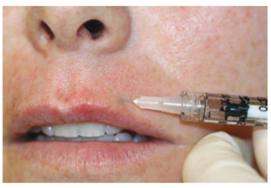 Hình 5. Kỹ thuật tiêm botulinum toxin cơ vòng miệng