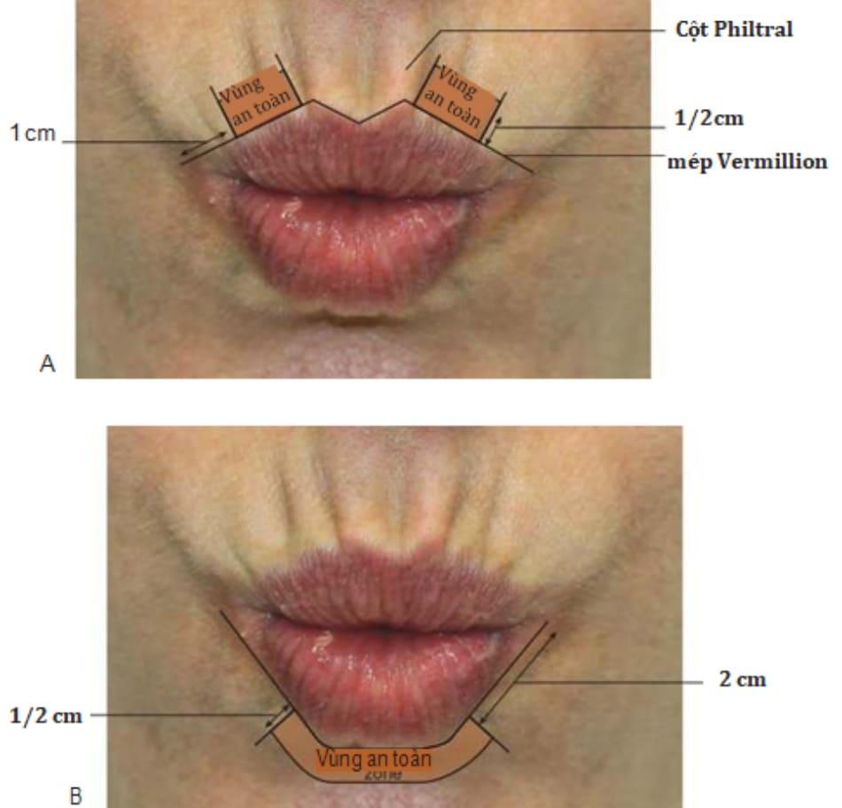 Hình 3. Vùng tiêm an toàn đối với môi trên (A) và môi dưới (B) khi điều trị botulinum toxin.