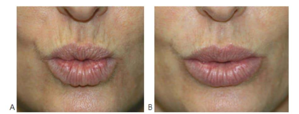 Hình 6. Nếp nhăn môi trên trước (A) và 1 tháng (B) sau điều trị phối hợp botulinum toxin (Botox) và filler, ảnh chụp ở trạng thái hoạt động của cơ.