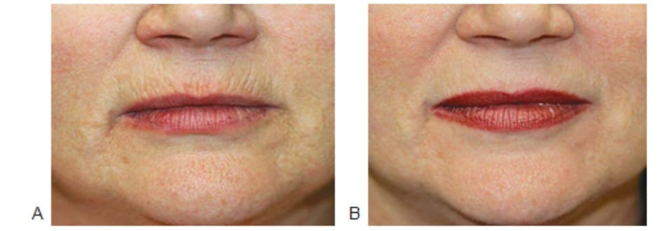 Hình 7. Nếp nhăn môi trên trước (A) và 1 tháng (B) sau điều trị phối hợp botulinum toxin, filler và tái tạo bề mặt bằng laser xâm lấn vi điểm cho vùng môi trên.