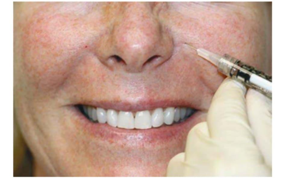 Hình 3. Kĩ thuật tiêm botulinum toxin cho cơ nâng môi trên cánh mũi.