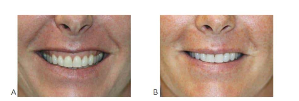 Hình 1. Cười hở lợi trước (A) và 2 tuần (B) sau điều trị botulinum toxin cơ nâng môi trên cánh mũi, ảnh chụp khi cười.