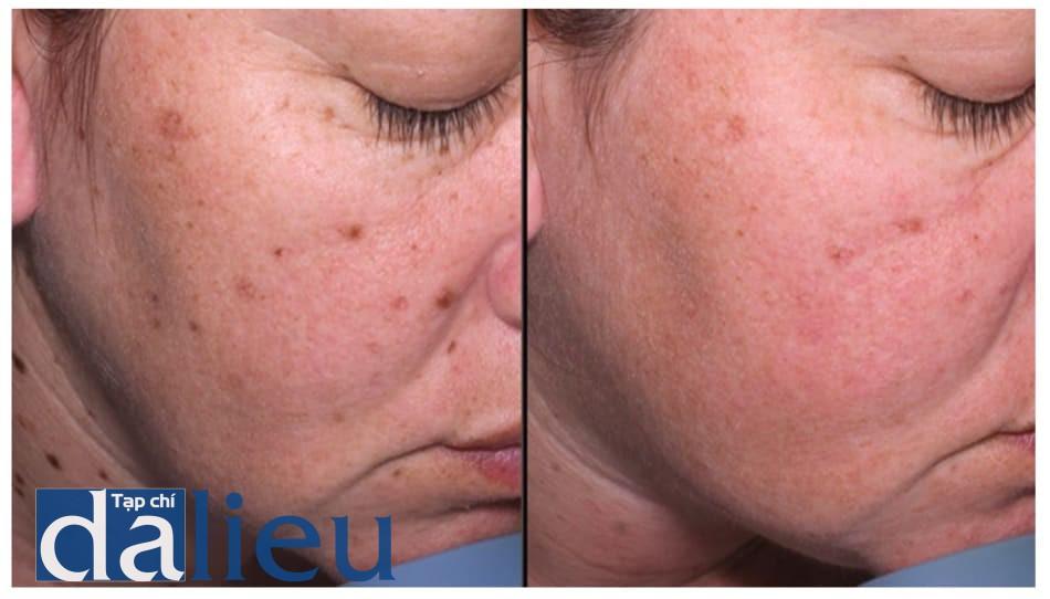 Hình 3: Điều trị nevi, da nhiều dầu và rám má ở mặt và cổ (hình ảnh mặt phải bệnh nhân). Điều trị hàng tháng với laser Q-switched Nd-YAG 1064nm, theo sau bởi peel retinoic acid 5%. Trái: trước. Phải: sau 4 liệu trình.