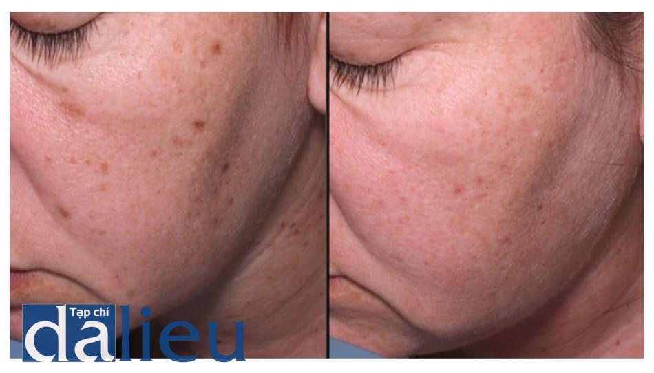 Hình 4: Điều trị nevi, da nhiều dầu và rám má ở mặt và cổ (hình ảnh mặt phải bệnh nhân). Điều trị hàng tháng với laser Q-switched Nd-YAG 1064nm, theo sau bởi peel retinoic acid 5%. Trái: trước. Phải: sau 4 liệu trình.