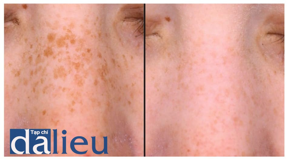 Hình 6: Điều trị sạm da hàng tháng với laser switched Nd-YAG 1064nm và 532 nm tiêu điểm, sau đó peel bằng mặt nạ retinoic acid 5% trong 3h. Trái: trước. Phải: sau 3 liệu trình.