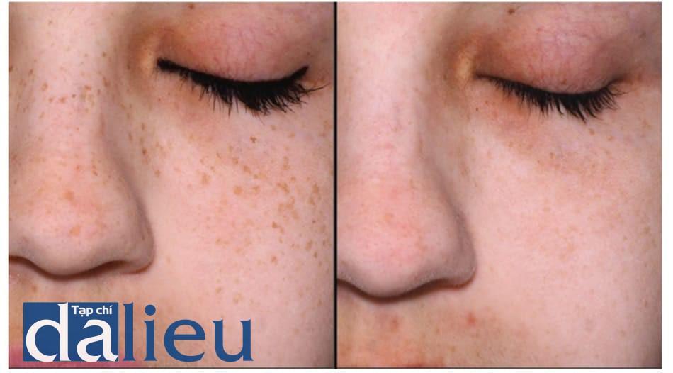 Hình 7: Điều trị sạm da mặt hàng tháng với laser switched Nd-YAG 1064nm và 532 nm tiêu điểm, sau đó peel bằng mặt nạ retinoic acid 5% trong 3h. Trái: hình ảnh mũi phóng to. Phải: hình ảnh mũi phóng to, sau 3 liệu trình.