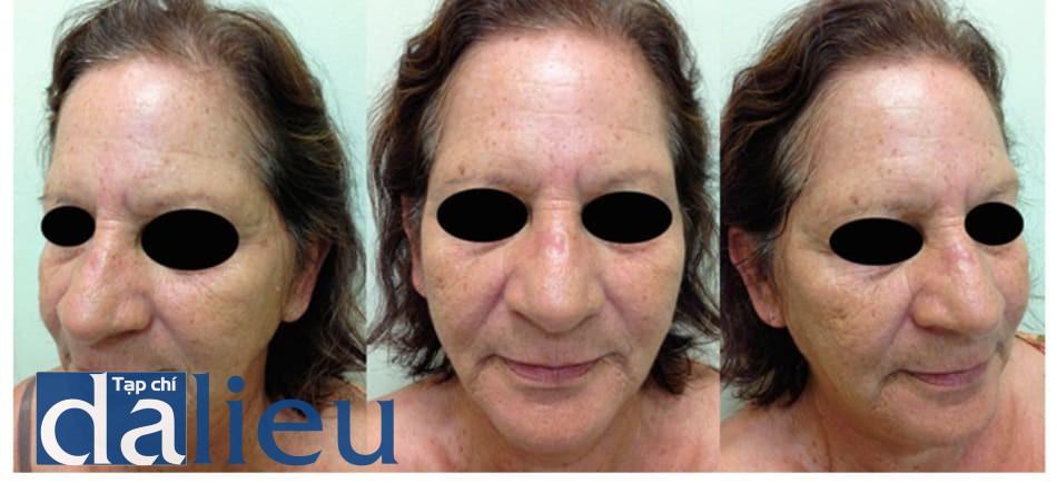 Hình 8: Dung dịch Jessner + Trichloroacetic 35% + Laser CO2- Ảnh trước điều trị
