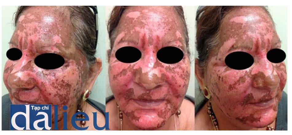Hình 10: Dung dịch Jessner + Trichloroacetic 35% + Laser CO2 – Ngày thứ 4- 15 sau điều trị